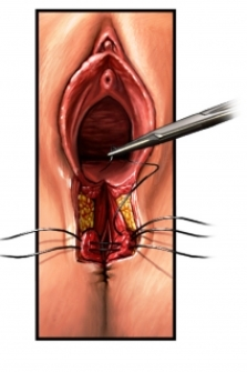 reparaci&oacute;n quir&uacute;rgica de un desgarro vaginal
